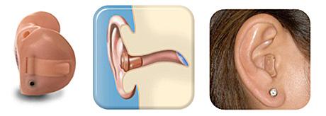 aparelho-auditivo-intracanal-ITC completo