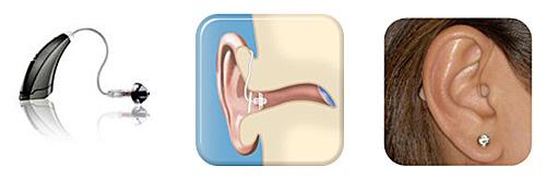 aparelho-auditivo-receptor-no-canal-RIC completo