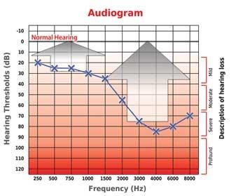 Aparelhos Auditivos Analógicos | Audioclean Aparelhos Auditivos