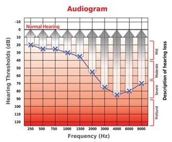 Aparelhos Auditivos Digitais | Audioclean Aparelhos Auditivos